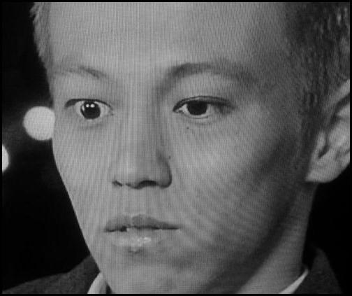 本田圭佑 レーシック 失敗 画像
